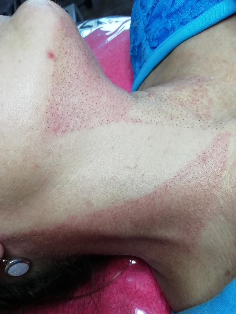 Plasma Pen – Skinlogix │ Beauty & Skin Care in Bloemfontein